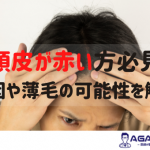 頭皮が赤いのは危険信号?薄毛との関係や原因について徹底解説!