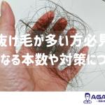 抜け毛が多いのは何本から?気になる症状などについて徹底解説